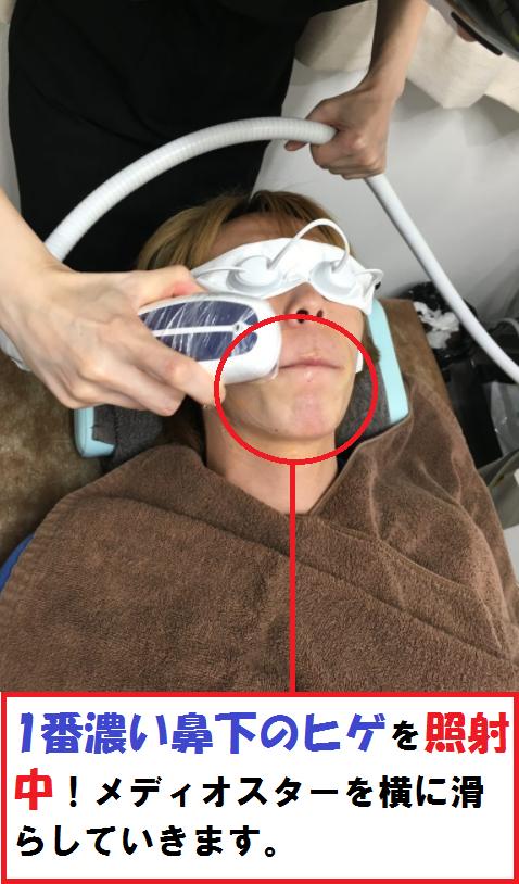 鼻下のヒゲ