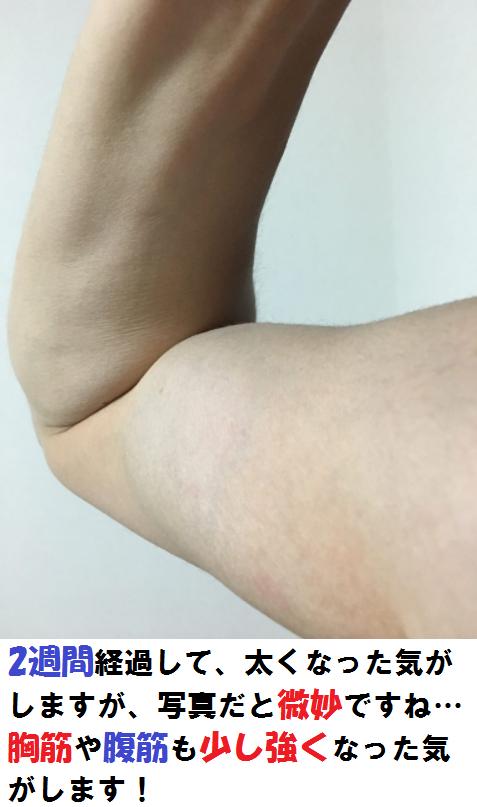 2週間後の腕