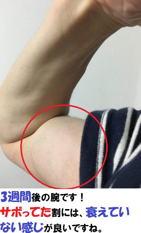 3週間後の腕