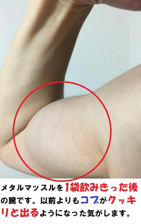 4週間後の腕