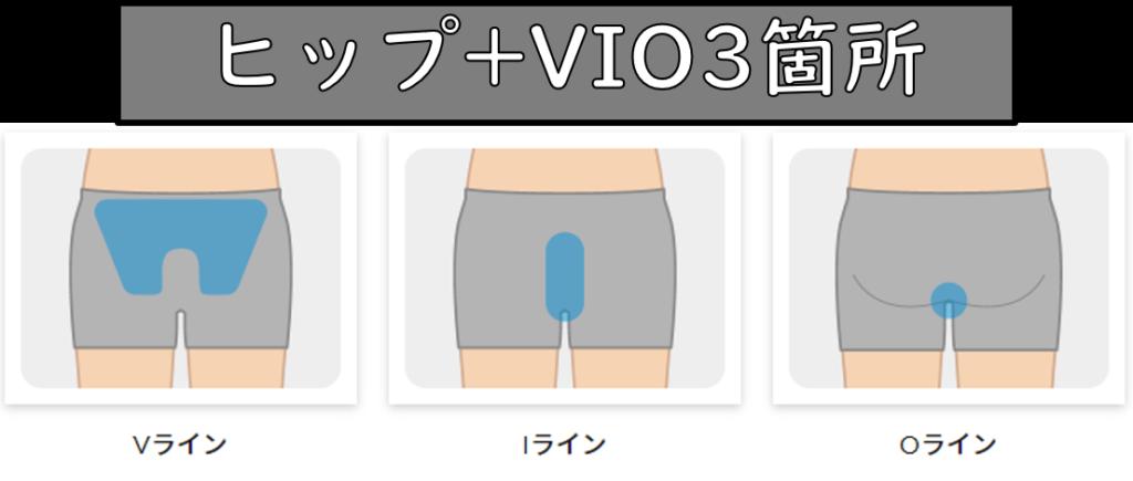 ヒップ+VIO