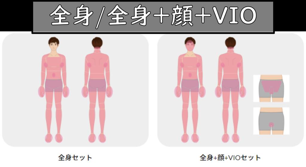 全身脱毛/全身脱毛+顔+VIO